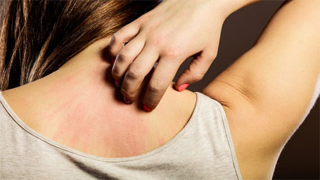 Naturoville Psoriasis Treatments